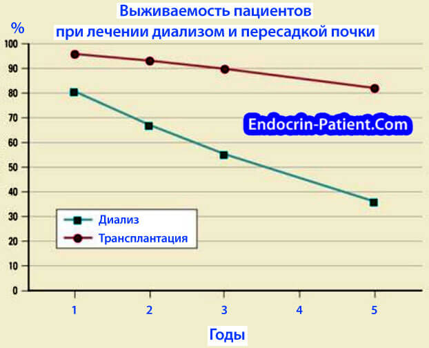 Пересадка почки при диабетической нефропатии